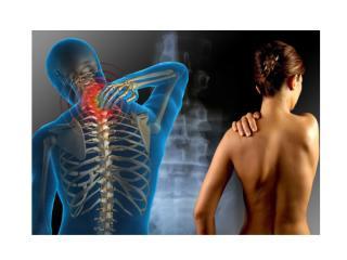 Nervio Ciatico Tratamiento, Ejercicios Para Ciatica, Pinzamiento Del Nervio Ciatico, Ciatico Nervio.pptx